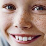 Odontologia Social – descubra o que é e saiba porque fazer!