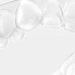 Ortodontia com CEREC Ortho